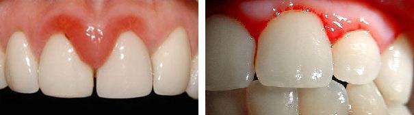 Почему может болеть десна возле зуба | ВитаПортал